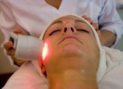 лазерно премахване на акне