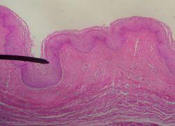 vaginalni anatomija