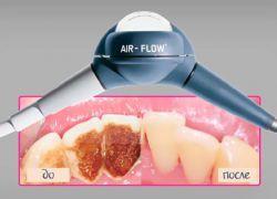 Aparate de curățare dentare fluxul de aer