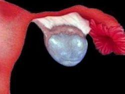 chistadenomul ovarian