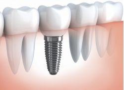 зъбна имплантация