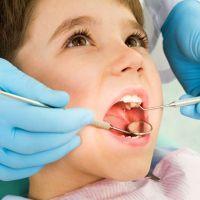 fluorozei dentare