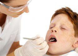 Sigilarea dinților la copii
