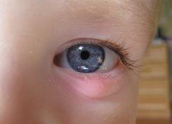 Ячмень на глазу – причины появления и лечение