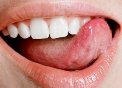 Язык – зеркало здоровья