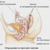 vrata maternice istezanje
