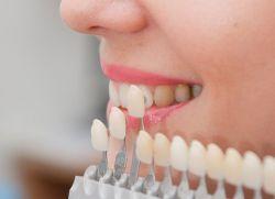 etapele de restaurare dentare estetice