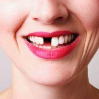 К чему снится выпадение зубов?