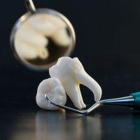 К чему снится вырванный зуб?