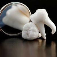 К чему снится - зуб выпал без крови?