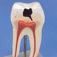 К чему снятся гнилые зубы?