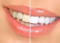 Cum de a albi dintii la domiciliu
