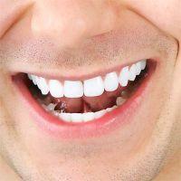 capace pentru albirea dinților