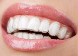 capace pentru alinierea dinților