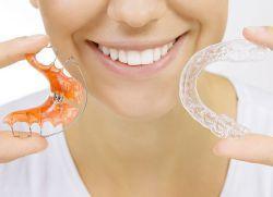 capace dentare pentru alinierea dintilor