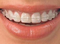cum să se stabilească dintii stricati