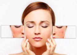купероз на лице причины и лечение