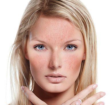 Краснота на лице появляется из-за мелких капилляров