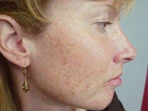 Пострадалото кожата