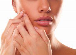 Акнето Лечение на лицето
