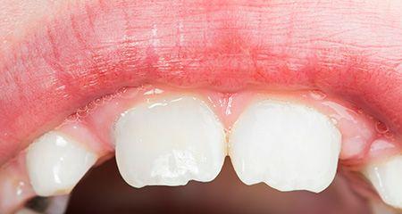 В каком возрасте сколько молочных зубов у детей должно быть