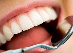 капацитет зъби