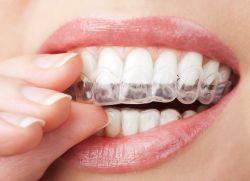 benzi de albire de dinți