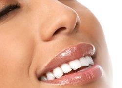 обеливания зубов перекисью водорода