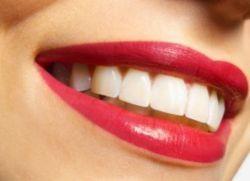 Este sifon albește dinții