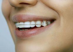 Placă pentru alinierea dinților