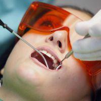 процес пломбирования зубов