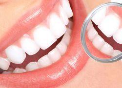 curățare profesională a dinților