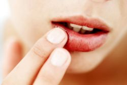 Простуда на губах – как лечить быстро?