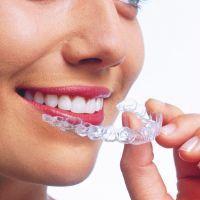 mouthguard transparent la alinierea dinților