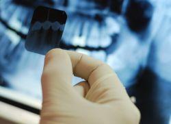 Рентгенови лъчи на зъбите