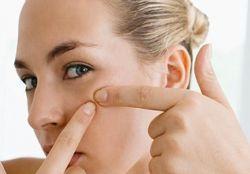 Угревая сыпь на лице – лечение