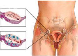 creste in ovar in cauze femei