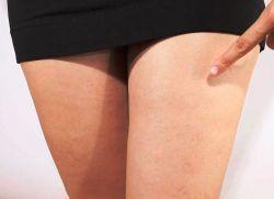 симптомы варикоза вен нижних конечностей