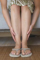 Вены на ногах - лечение