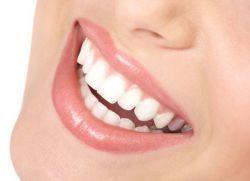 furnire aliniere dinti