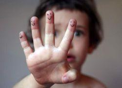 Влажные ладошки у ребенка