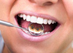brackets Aliniere dinți