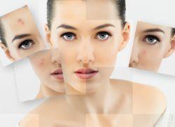 Высыпания на лице у женщин – причины