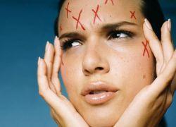Заболявания на кожата