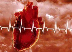 Заболевания сердечнососудистой системы