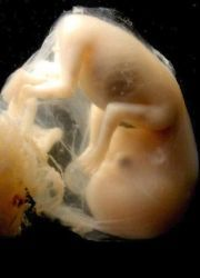 синдром задержки внутриутробного развития плода