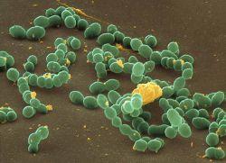 Зеленящий стрептококк
