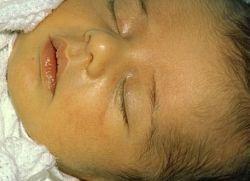 Желтушка у новорожденных - чем лечить?
