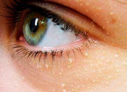 Жировик в уголке глаза – как избавиться?