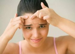 Жировики на лице - как избавиться?